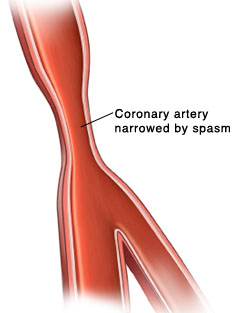 Cross section of artery with narrowing due to spasm.