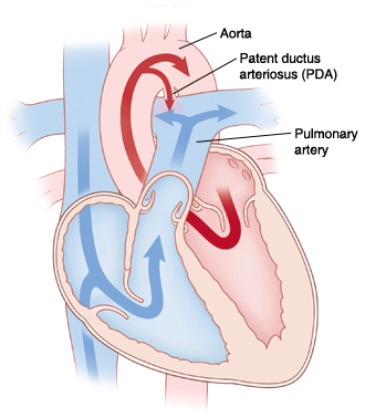 Front view cross section of heart showing patent ductus arteriosus connecting aorta and pulmonary artery. Arrows show blood flowing from left ventricle through aorta and some blood flowing through PDA to pulmonary artery.