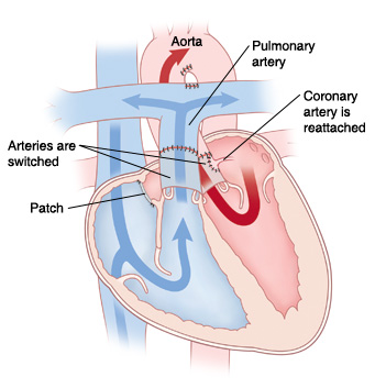 Front view cross section of heart showing repair for transposition of the great arteries. Aorta and pulmonary artery are switched. Patch is between atria. Coronary artery is reattached to aorta.