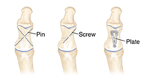 Front view of fractured bone showing three ways to close fracture: pins, screw, and plate.