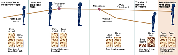 Graph showing bone growth and loss over woman's lifespan, with and without treatment for osteoporosis.