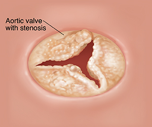 Top view of open aortic valve with stenosis.