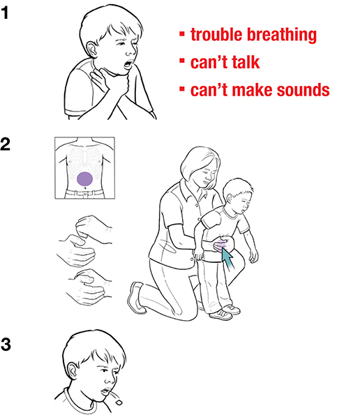 3 steps in giving abdominal thrusts to child as first aid for choking.