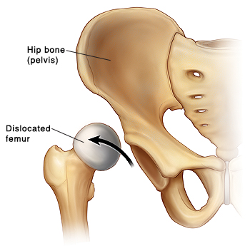 Front view of hip bone (pelvis) showing dislocated femur with head of femur coming out of socket.