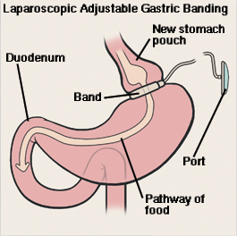 Front view of stomach and duodenum showing laparoscopic adjustable gastric banding. Band is around top of stomach, creating small pouch. Band is connected by tube to port just under skin. Arrow shows path of food through stomach pouch, stomach, and duodenum.