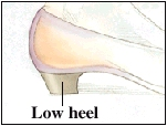 Image of a low-heeled shoe